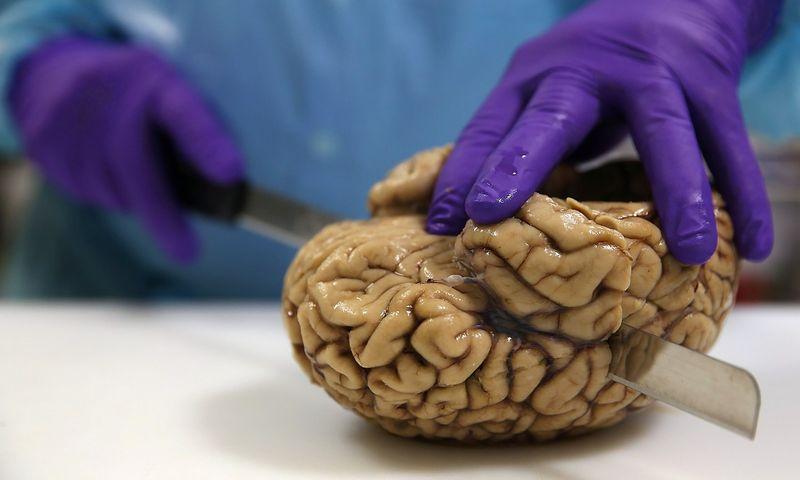 smegenų prekybos sistema 7 0 cituoja dramblių prekybos informacinę sistemą