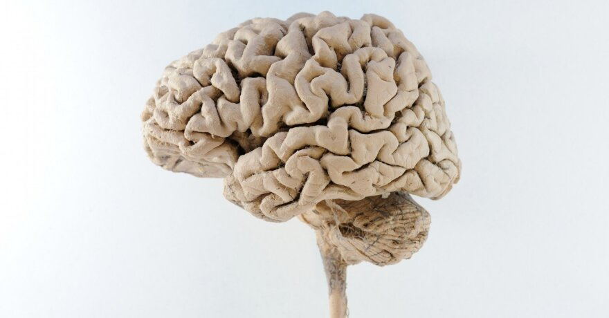 smegenų prekybos sistema 7 0 kaip gauti pasirinkimo patvirtinimą td ameritrade